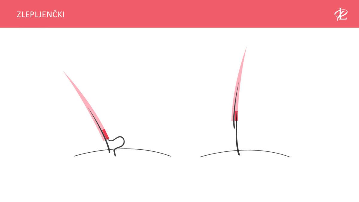zlepljene-trepalnice-poskodovane-trepalnice-unicene